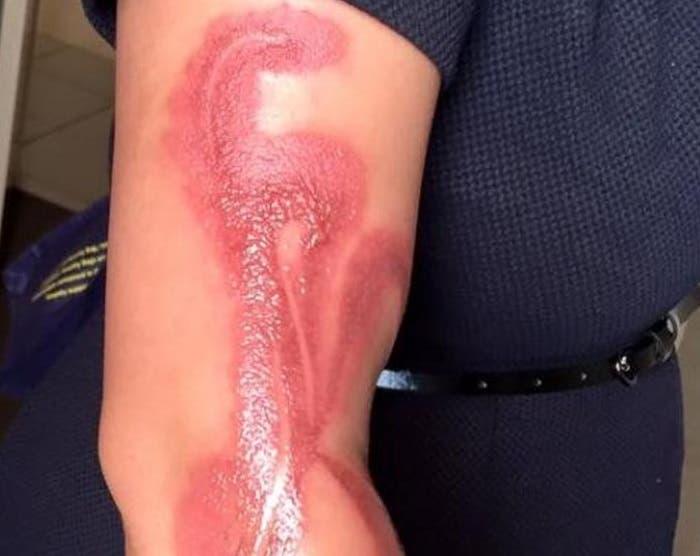 brazo quemado mujer en australia